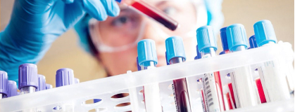 Laboratory for HIV and Opportunistic Infections Diagnosis
